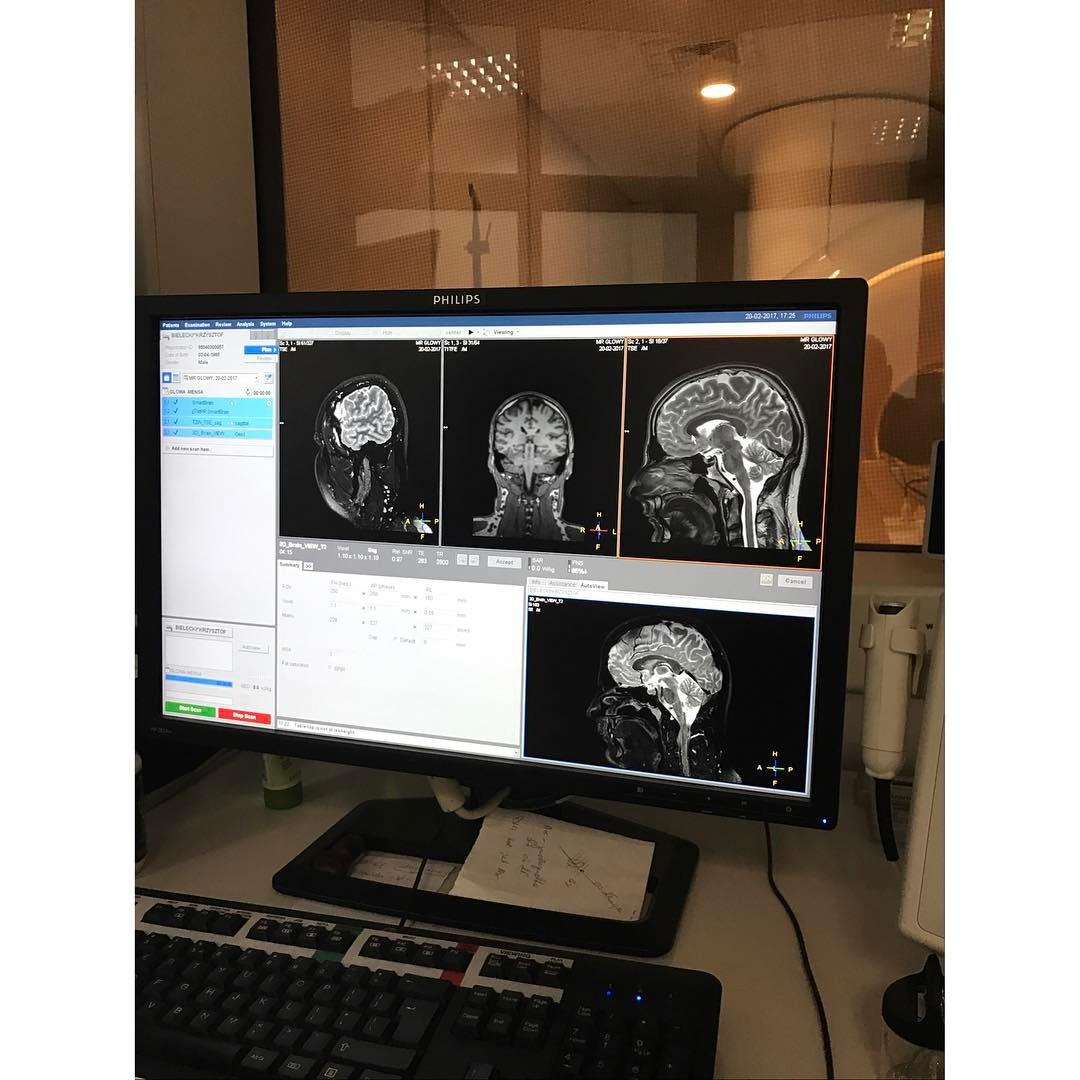 Mózg. A także niewielka torbiel retencyjna w zatoce (po lewej na dole), być może z powodu zęba. Bardzo ładna przysadka. I kręgosłup za prosty w okolicy drugiego kręgu.